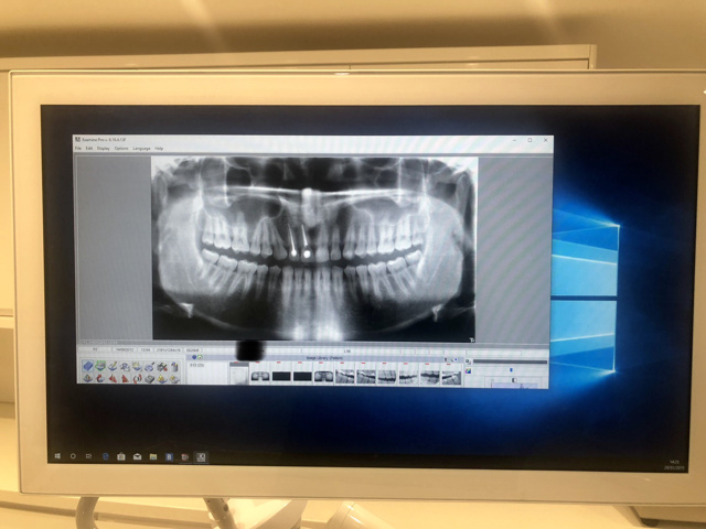 Digital X-Ray - Intra Oral 1