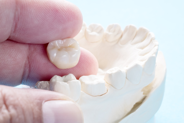 Regaining Function With Dental Crowns