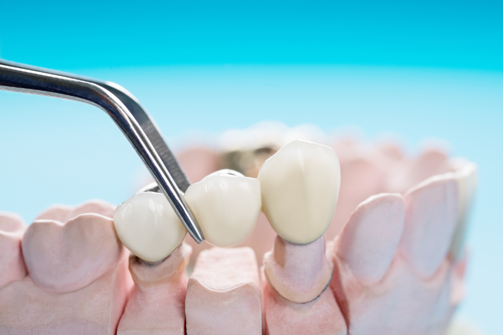 Bridges Provide Many Options For Tooth Replacement